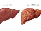 fegato-normale-e-fegato-cirrotico